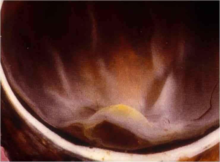 Pigmento Macular en la salud y la enfermedad de la retina